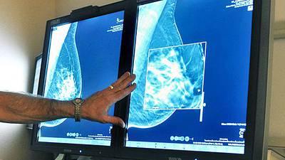 Medical nonprofit catering to Central Florida LGBTQ+ community seeking mammogram machine